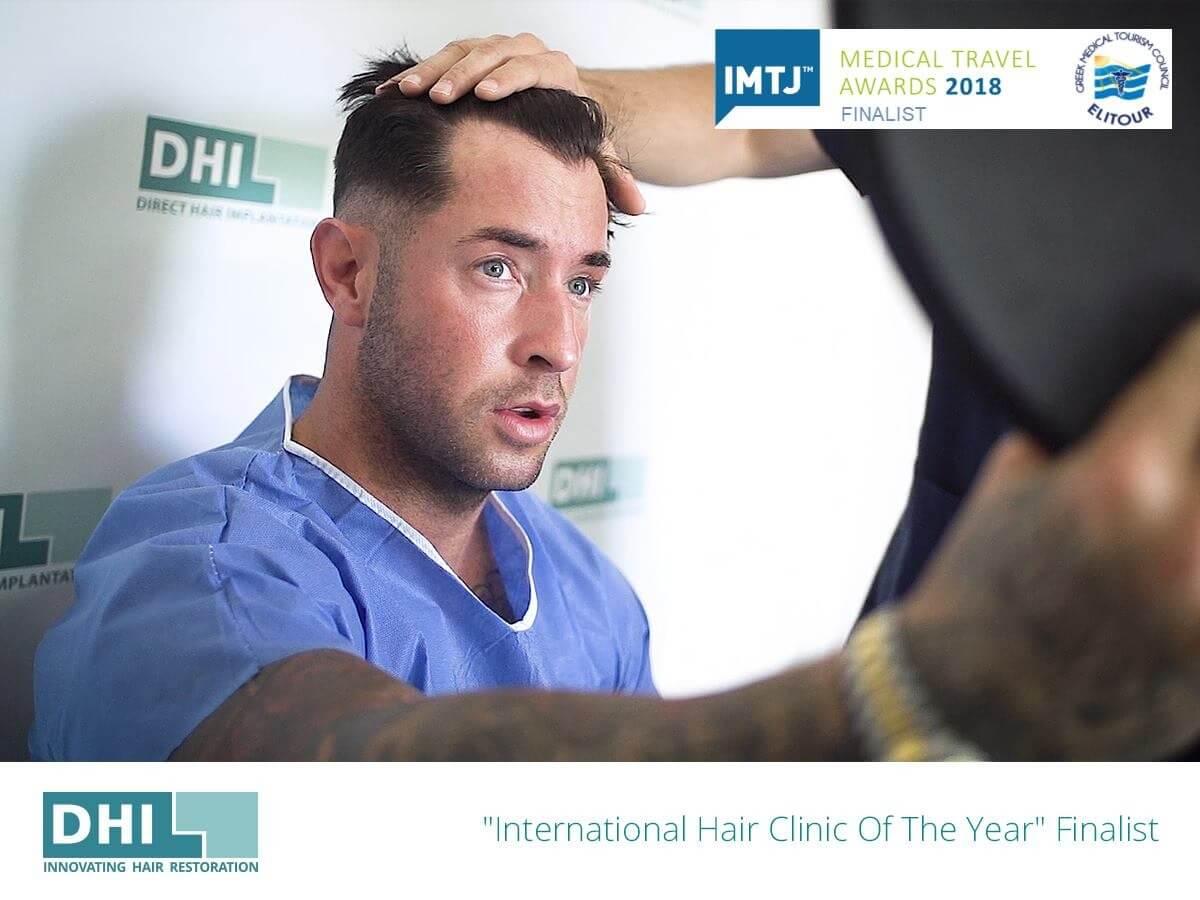 השתלת שיער לגברים