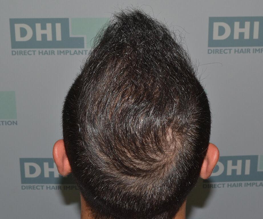 השתלת שיער DHI